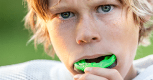 custom fitted mouth guards